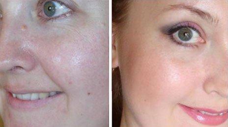 Разница между сухой и нормальной коже лица