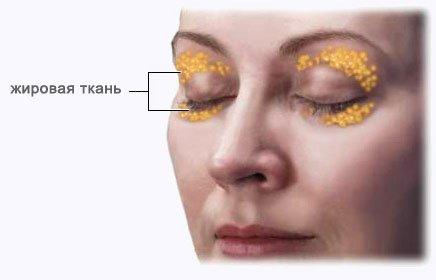 Жировые мешки вокруг глаз